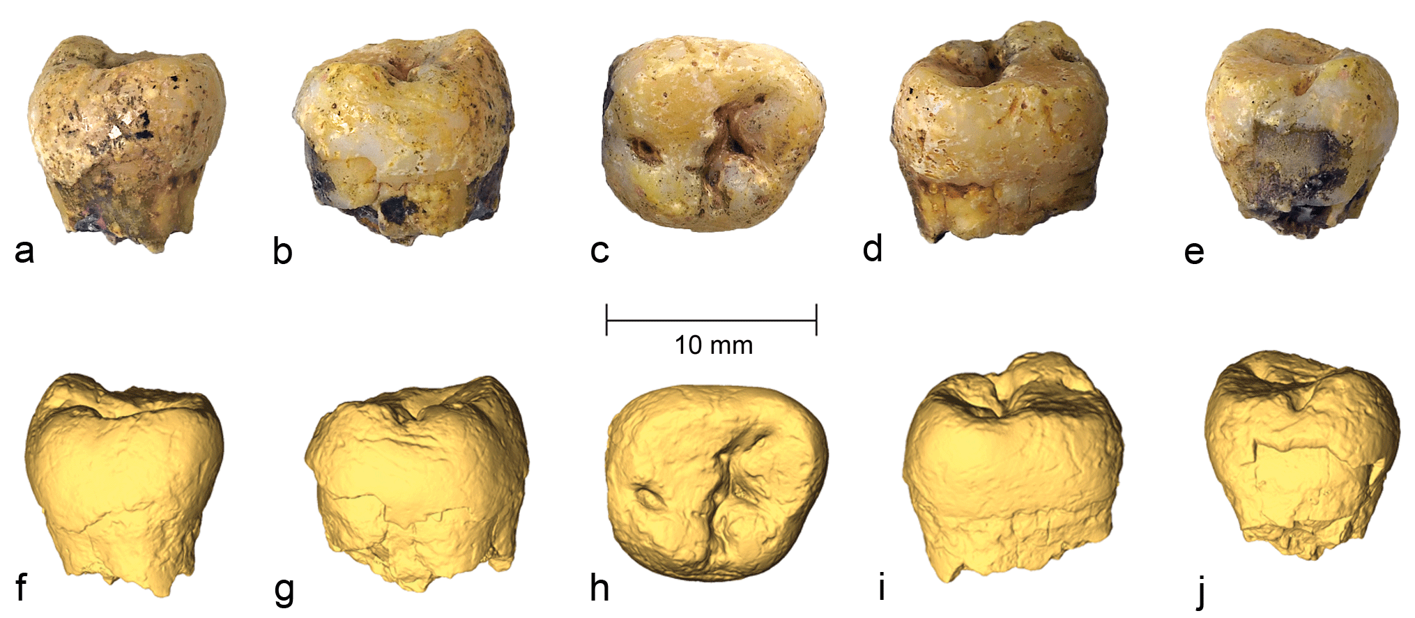 different views of the molar